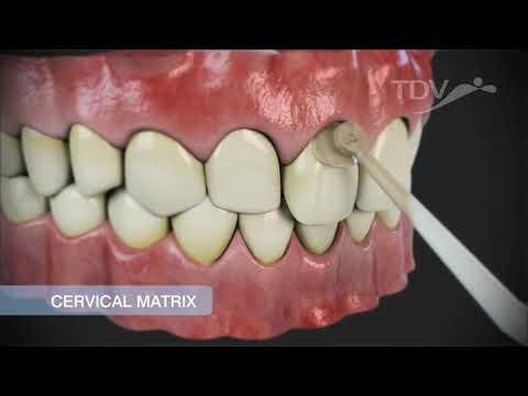 TDV CERVICAL MATRIX - Restauraciones de clase V