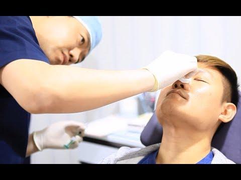 Plastic Surgery in Korea Review & Info | Non-Surgical Nose Job (Liquid Rhinoplasty)