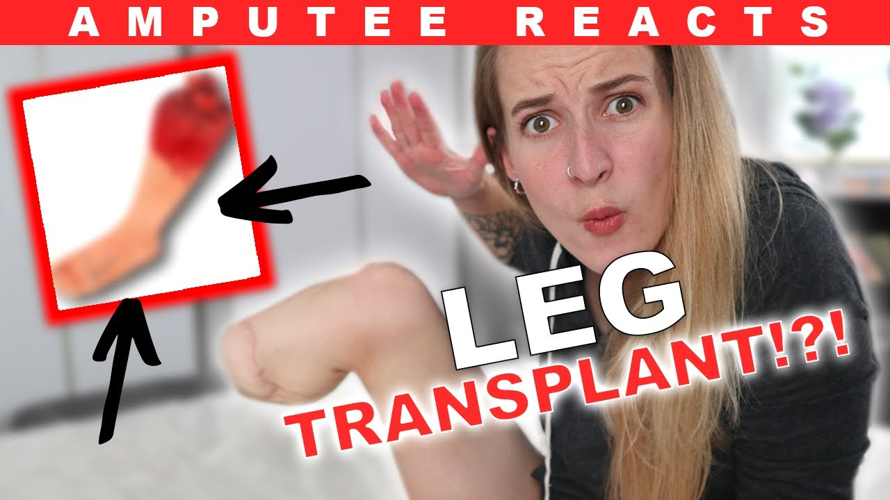 Amputee Reacts to LEG TRANSPLANT!? (This is ACTUALLY Real!)