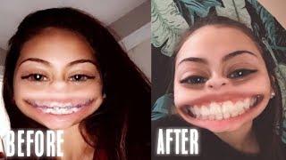 GETTING MY BRACES OFF VLOG! | Mariah Alexis
