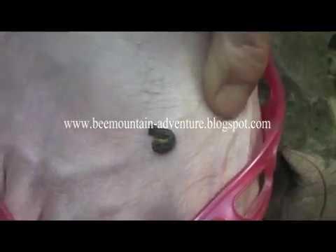 Cara Sederhana Mengilangkan Flak Hitam Di Wajah Pakai Sabun Gove from YouTube · Duration:  4 minutes 26 seconds