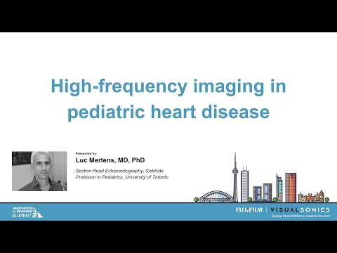 High frequency imaging in pediatric heart disease