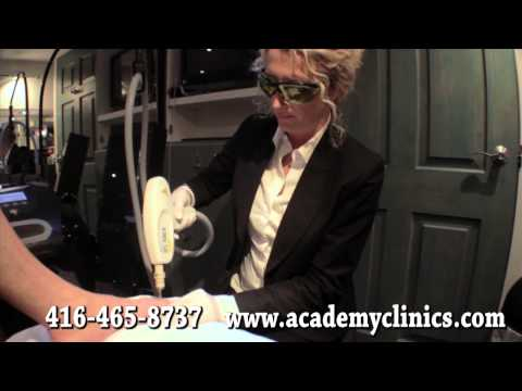 Laser for Fungal Nail – Toronto, ON –  Foot Doctor, Foot Specialist – Chiropodist Marz Hardy
