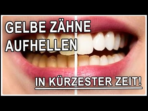 Weiße Zähne Bekommen In 5 Minuten Mit Hausmittel Gelbe Zähne