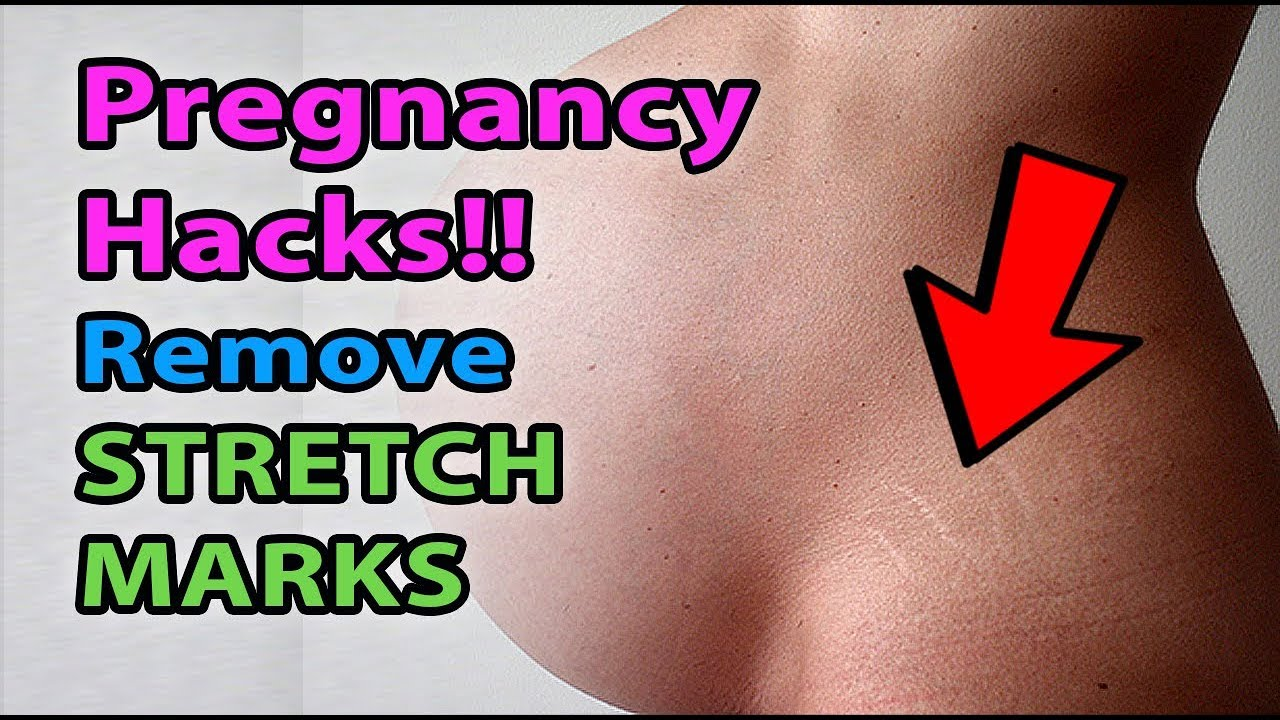 How to get rid of stretch marks with natural home remedies