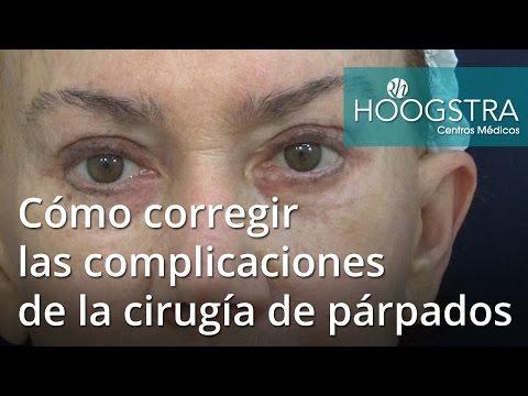 Cómo corregir las complicaciones de la cirugía de párpados (16128)