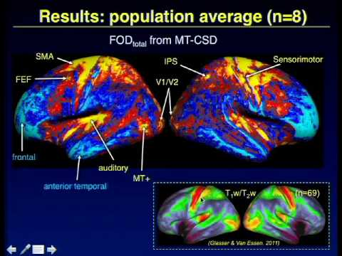 In vivo myelo-architecture using whole-brain diffusion MRI