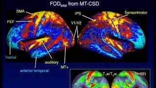 In vivo myelo-architecture using whole-brain diffusion MRI
