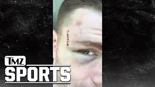UFC's Paul Felder Gives Video Tour Of Gnarly UFC 226 Fight Injuries | TMZ Sports