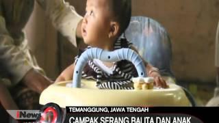 Masyarakat yang sudah memperoleh imunisasi campak dan rubella di Indonesia kurang dari satu persen. .