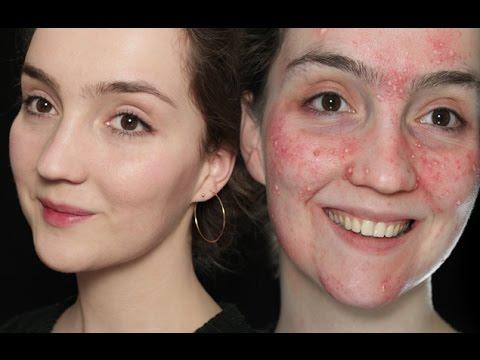 skin-transformation-makeup-(no-makeup-makeup-+-how-to-create-acne)