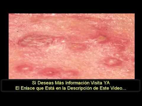 lceras genitales en las mujeres - Clnica DAM Madrid