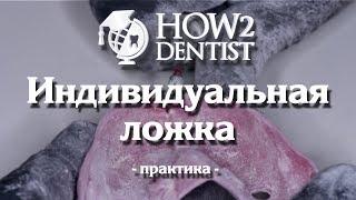 Как сделать индивидуальную ложку / How to Dentis
