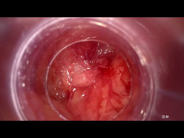 José Maria Gaya - Video Endoscopic Inguinal Lymphadenectomy