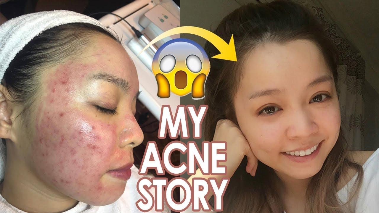 Nhật Kí Trị Mụn của Trinh ♡ My Acne Story ♡ Trinh Pham