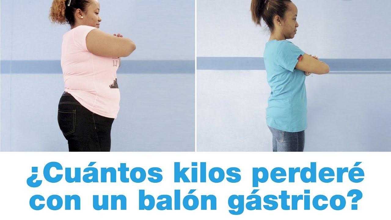 globo gastrico para bajar de peso