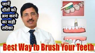How to brush your teeth? दन्त ब्रश करने का सही तरीका: Ways to Brushing Teeth by Dr. Praveen Bhatia