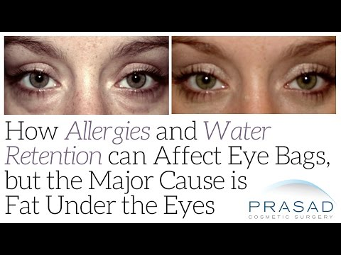 How Allergies and Water Retention can Affect Eye Bags, but the Major Cause is Fat Under the Eyes