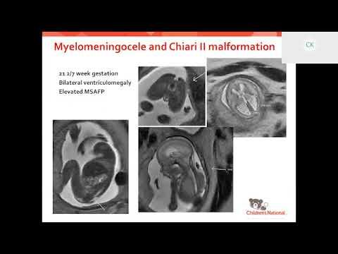 Fetal Medicine: Fetal Neurology Fellowship