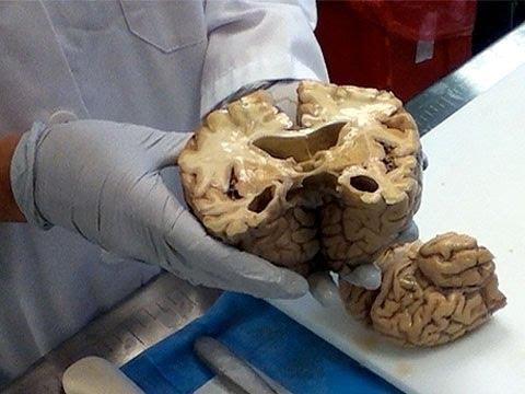 Meet Manuella Douglass, the world's most prolific brain ...