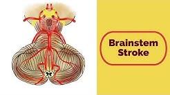 Brainstem Stroke Syndromes