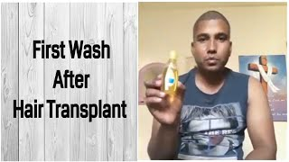 First Hair Wash After Hair Transplant
