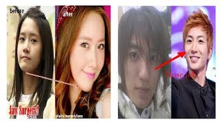 30 ARTIS KOREA OPERASI PLASTIK DENGAN HASIL PALING CANTIK DAN GANTENG PART 1