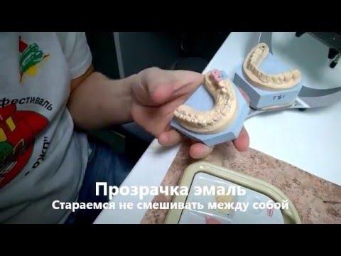 Зубные коронки: виды, сравнение плюсов и минусов, фото