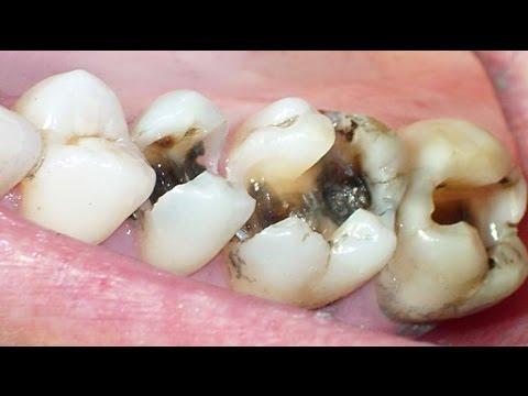 Cara Mengobati Sakit Gigi Berlubang Dengan Bawang Putih Youtube