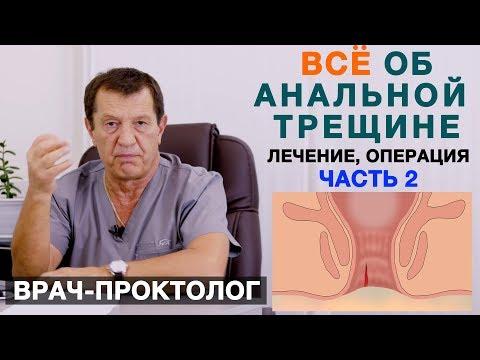 Анальная трещина (часть 2) - лечение, операция