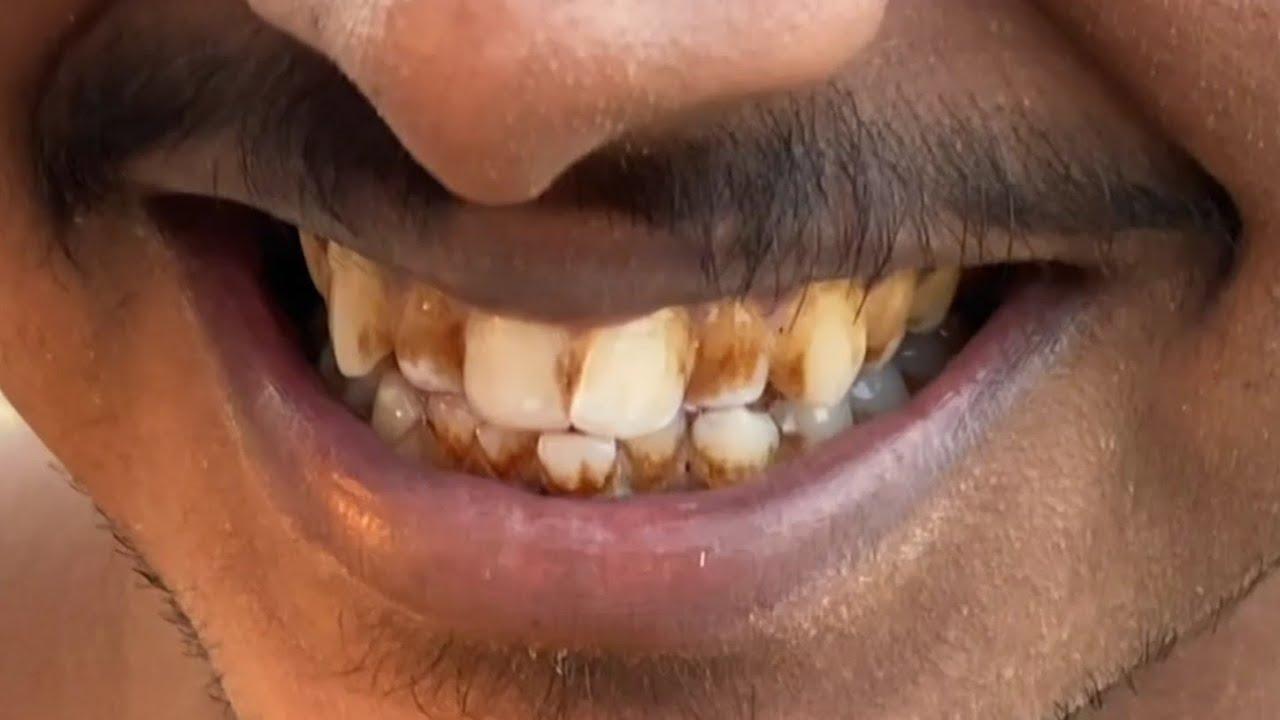 Medical test आर्मी में दांतों का चेकअप कैसे होता है Teeth medical checkup Indian army in hindi