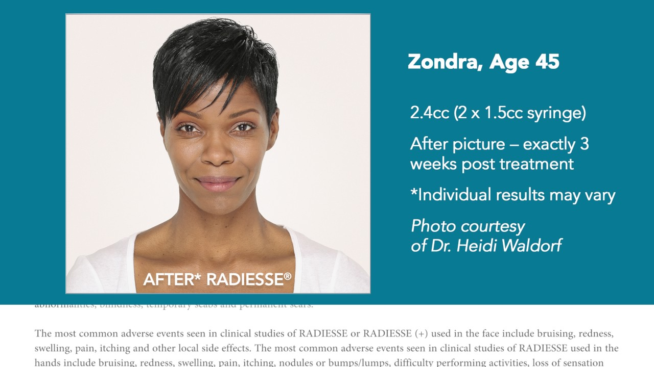 Natural looking wrinkle filler results with RADIESSE®!