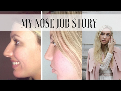 MY NOSE JOB / RHINOPLASTY STORY BEFORE & AFTER | Scarlett London