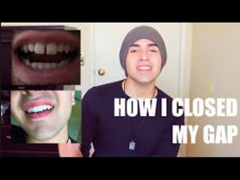 How to straighten teeth without braces cheap ways to straighten how to straighten teeth without braces cheap ways to straighten teeth without braces youtube solutioingenieria Images
