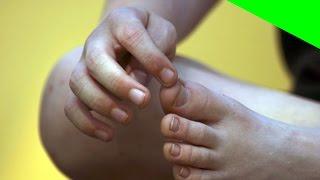 En problemas dedo circulación pie del de el gordo