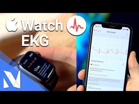 Apple Watch Series 4 EKG in DEUTSCHLAND - Wie funktioniert's? | Nils-Hendrik Welk