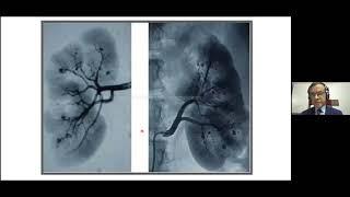 Syed Atiqul Haq || Diagnosis of Infectious Vasculitis