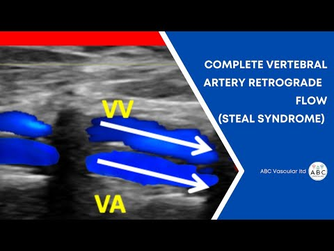 Subclavian Artery Complete Steal Syndrome (colour Flow Doppler). Carotid Doppler