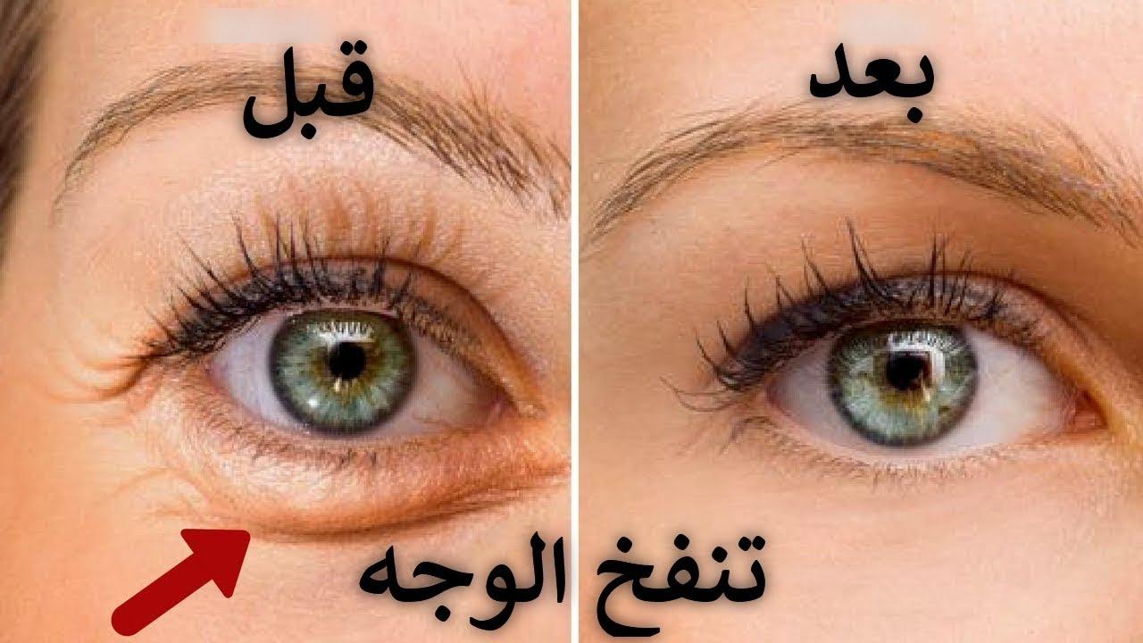 تنفخ الوجه والعينين السبب الحقيقي والعلاج Youtube