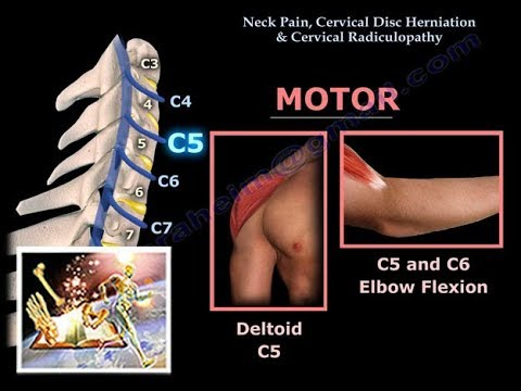 Neck Pain, Cervical Disc Herniation & Radiculopathy-Everything You Need To Know - Dr. Nabil Ebraheim