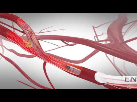 TCAR (Transcarotid Arterial Revascularization)