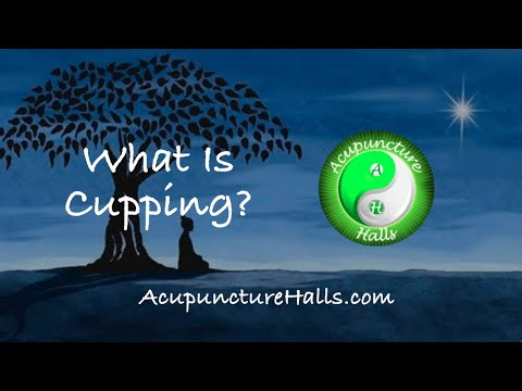"""San Juan Capistrano Acupuncturist, Dr Martha Hall, Presents """"What Is Cupping?"""""""