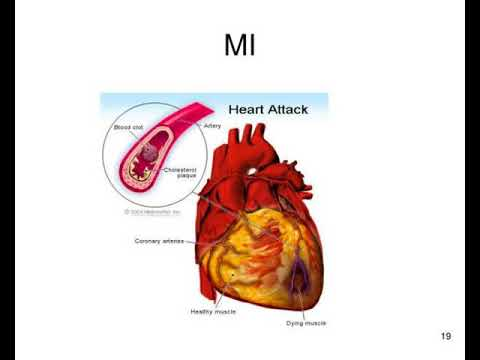 heart blood vessels circulation and diseases