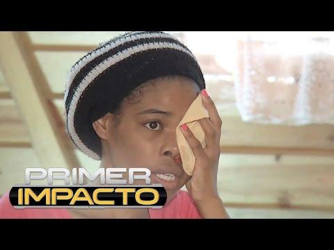 Mujer se aferra a la vida después de que le eliminaran un tumor que crecía en su rostro sin control