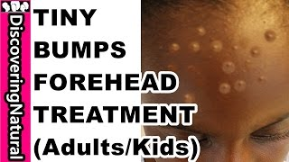 HOW TO GET RID OF TINY BUMPS ON FOREHEAD in 10 DAYS | Acne, Pimple, Rashes I KIDS and ADULTS
