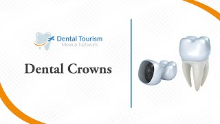 Dental Crowns Chiapas - Dental Tourism Mexico