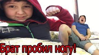 Влог: Брат пробил ногу./ я начинающий РУФЕР