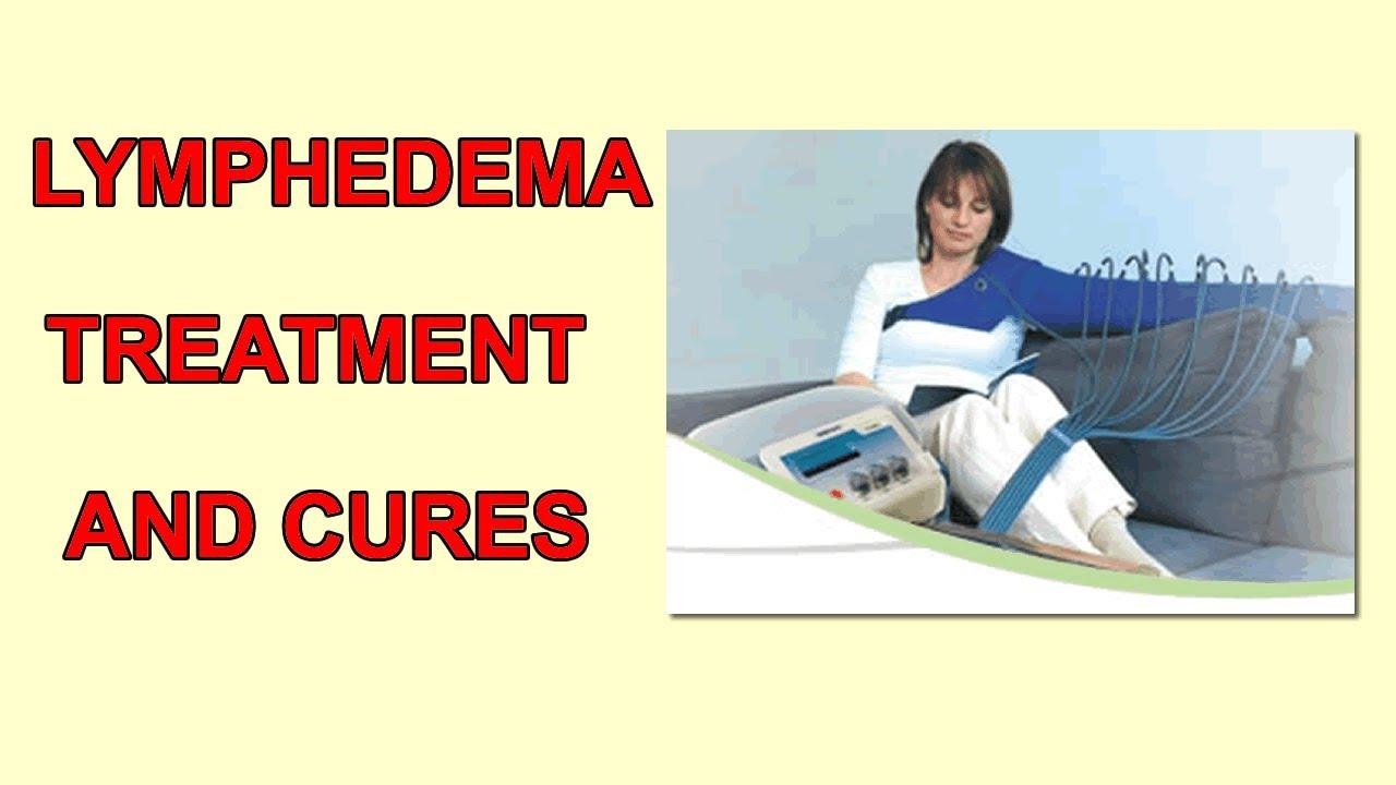 Lymphedema Treatment Natural Cures