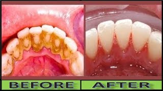 How To Clean Yellow Teeth Naturally and Remove Dental Plaque Without Tooth Paste In 2 Minutes