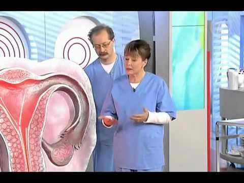 Лейкоплакия  Лечение лейкоплакии народными и традиционными средствами